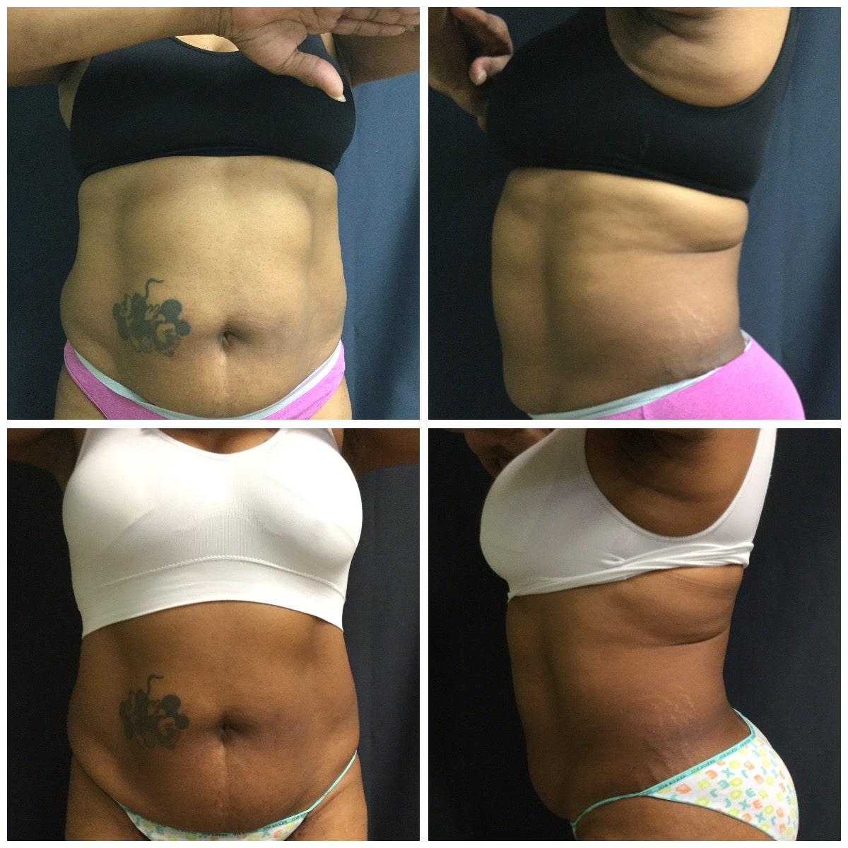 Fat Removal Treatment in Kenosha, laser fat removal, sculpsure kenosha