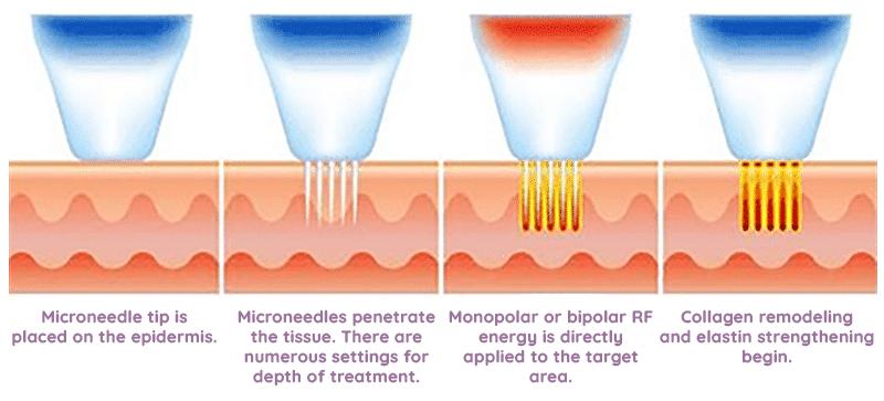 rf microneedling in kenosha, microneedling processes explained, rf microneedling near me