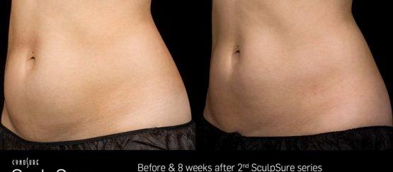 sculpsure kenosha, fat removal treatment in kenosha, kenosha fat removal