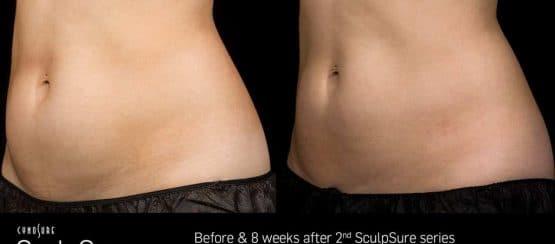weight loss treatments, kenosha affordable beauty, sculpsure treatments kenosha wi