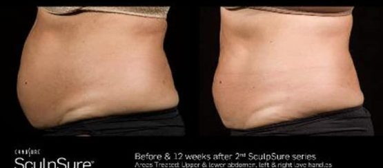 fat removal treatment kenosha, kenosha fat removal treatment, laser fat removal in kenosha