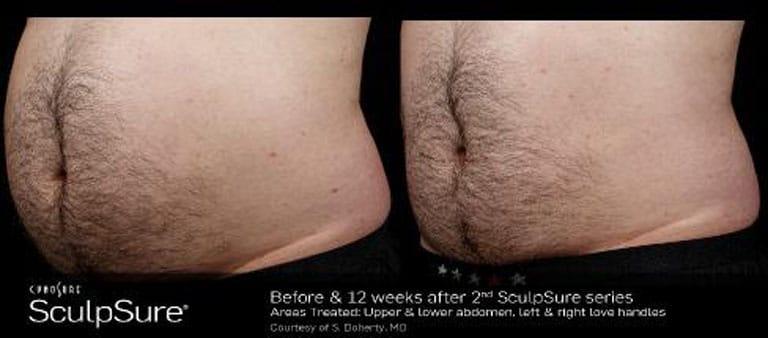 sculpsure treatment kenosha, fat reduction kenosha, kenosha fat reduction treatment